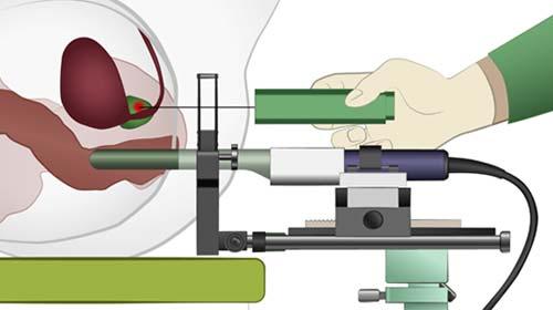 Prostatabiopsie - Fusionsbiopsie bei Diagnose Prostatakrebs